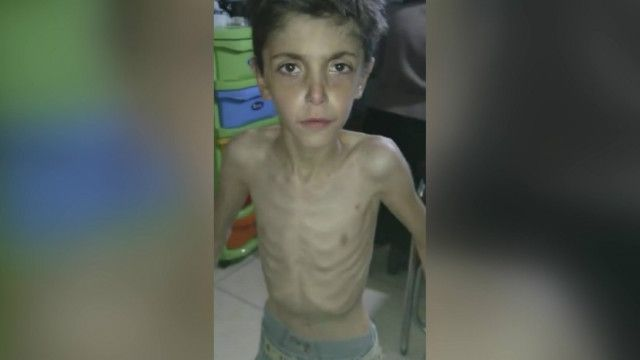 Suriye'de açlıktan ölen siviller!