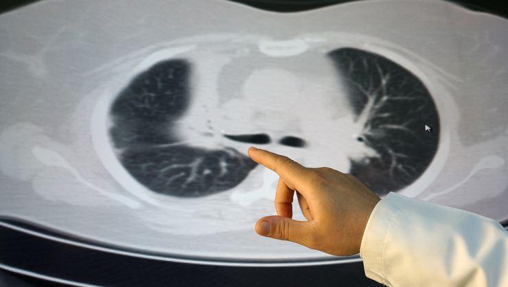 Akciğerinden yıllar önce yediği ceviz parçaları çıktı