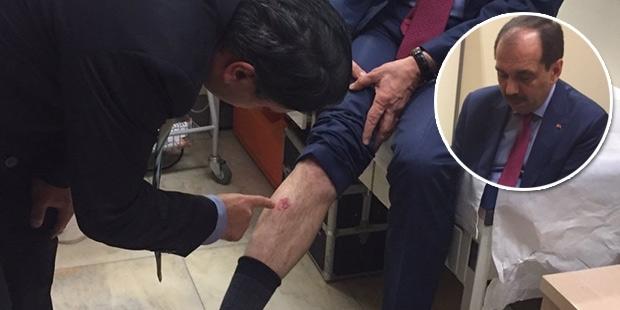 CHP'li Özel: Şamil Tayyar ısırıldığını ispatlarsa, gelip beni ısırabilir