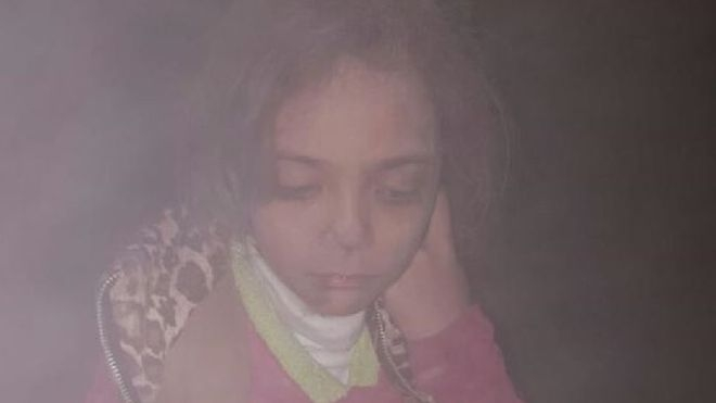 Halep'ten tweet atan 7 yaşındaki kız: Bunlar son günlerimiz olabilir
