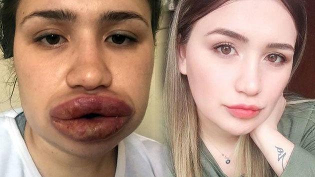 Kuaföre dudak dolgusu yaptıran Merve'nin doktoru: Dünyada görülmemiş bir vaka