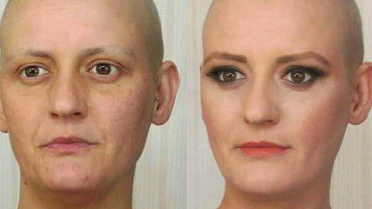 Meme kanseri reklamında oynadı, 9 ay sonra kanser oldu