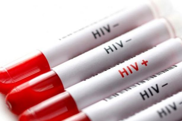Sağlık Bakanlığı: Türkiye'de 15 binden fazla HIV taşıyıcısı var