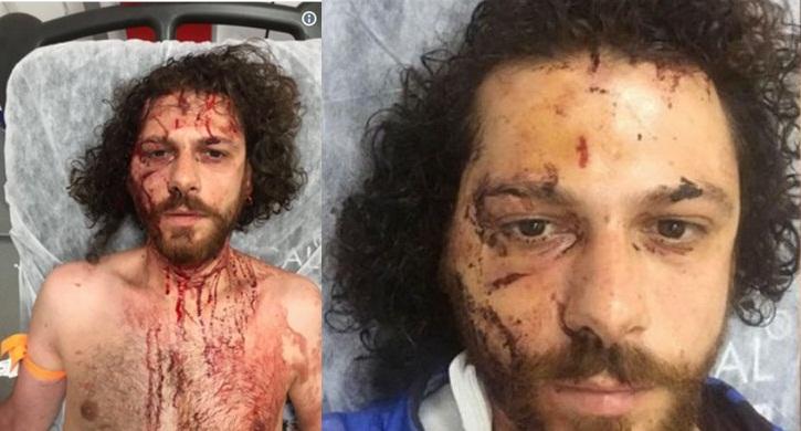 'Yanlış kişiye bağırıyorsunuz' diyen oyuncu Oral Özer'e saldırı