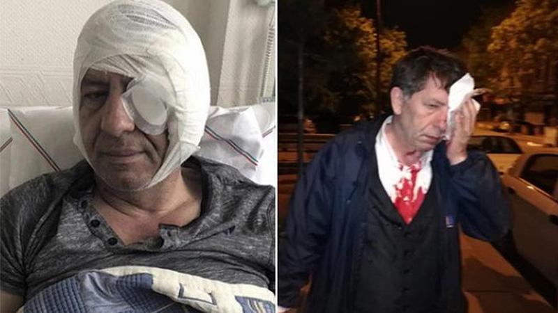Yeniçağ yazarı Demirağ'a saldıranlar hakkında adli kontrol kararı