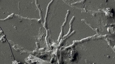 2 bin yıl önceye ait kafatasından sağlam beyin hücresi keşfedildi