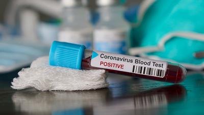 2 kişinin öldüğü İran'da 3 kişide daha Koronavirüs tespit edildi