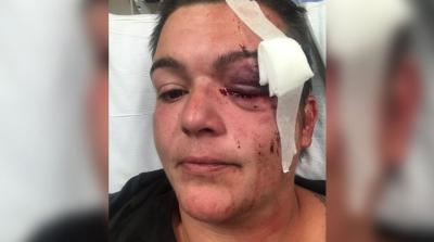 ABD'de polis gazeteciyi vurdu: Sol gözümde kalıcı körlük olacak