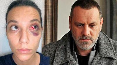 Adli tıp raporu: Kafanın duvara çarpması sonucu göz içinde morarma