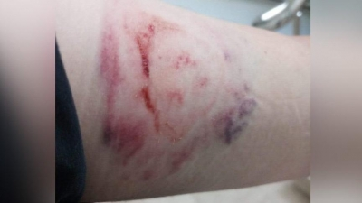 Alkollü hasta sağlık personelini ısırdı