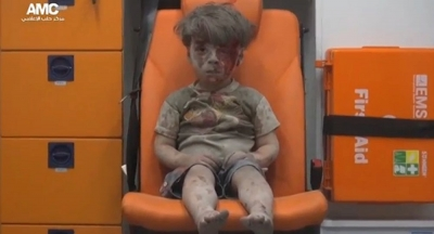 Beyaz Miğferler, propaganda yapabilmek için Halepli küçük Ümran'ı acı içinde bekletti