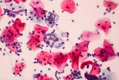 'Bir doz aşı bile rahim ağzı kanserinden koruyabilir'