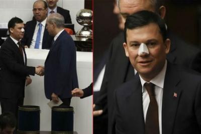Burnu kırılan AKP'li vekil konuştu