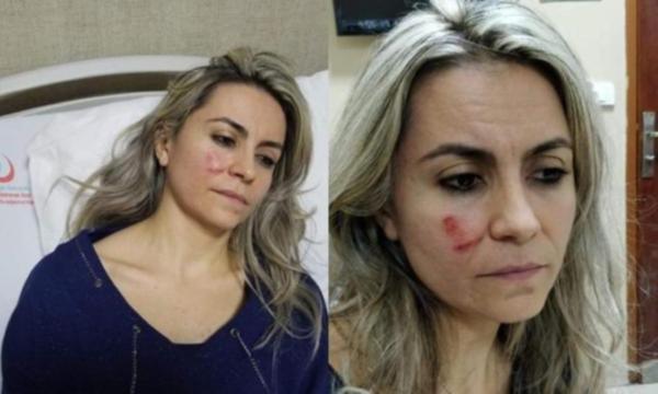 Çürük raporu vermeyen doktora saldırdı