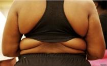 Dünyada obezlerin sayısı zayıflardan daha fazla!