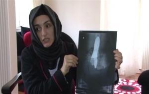 Doktorlar ameliyat edilen kadının karnında mala unuttu!