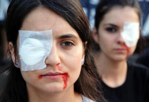 Polis, Gezi'de gözünü kaybeden 12 kişiyi arıyor!