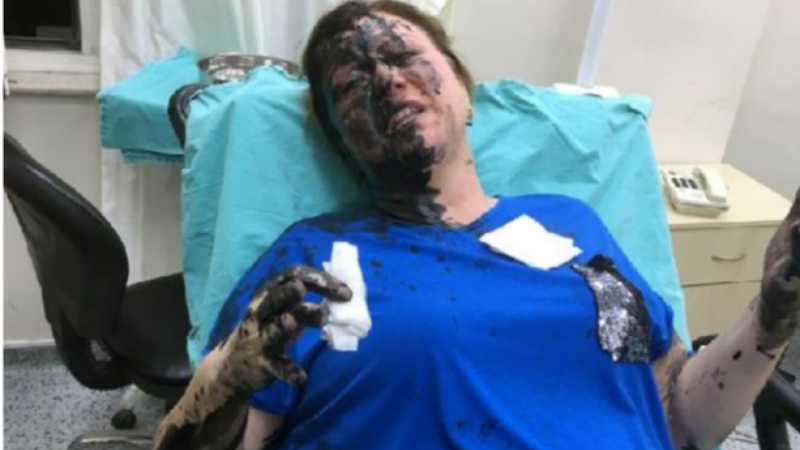 Genç kadını sokak ortasında darp edip üzerine siyah renkli sıvı madde döktüler