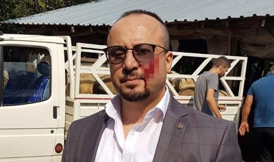 Haciz için gelen avukatı yanağından ısıran sanığa 2,5 yıl hapis cezası