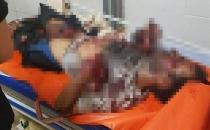 Hatay'da 2 Suriyeli bomba yaparken öldü!