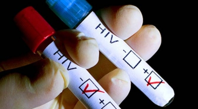 HIV bulaşmasında yüzde 450 artışın yaşandığı tek ülke Türkiye