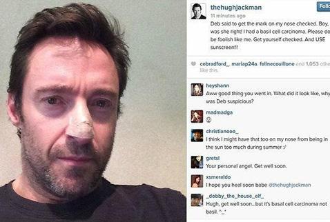 Hugh Jackman kansere yakalandı!