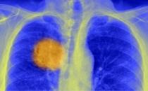 Kanserin evrim süreci nasıl işliyor?
