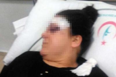 Kendisinden boşanmak isteyen kadına tornavida ile saldırdı