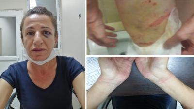Köpekle işkence edildiği iddia edilen HDP üyesi Sevil Rojbin Çetin tutuklandı