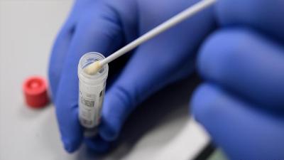 Koronavirüs hangi zeminde ne kadar süre kalıyor?