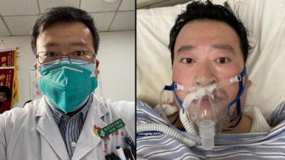 Koronavirüs'ü ilk fark eden doktor, Koronavirüs nedeniyle hayatını kaybetti
