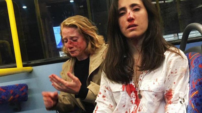 Lezbiyen çift, 'öpüşmelerini' isteyen erkekler tarafından saldırıya uğradı!