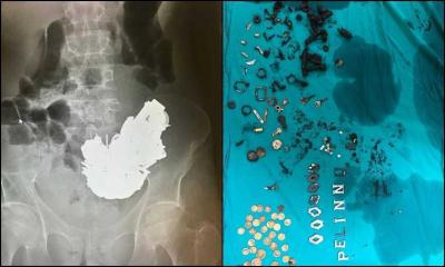 Midesinden 580 gram metal çıkarılan kişi öldü