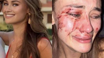 Model Daria Kyryliuk: Çeşme'de güvenlik bize saldırdı
