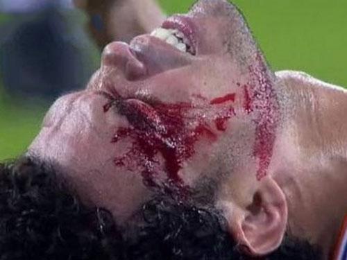 Real Madridli Pepe ölümden döndü!