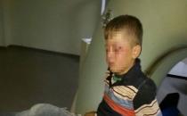 Polis Cizre'de 8 yaşındaki çocuğu vurdu!