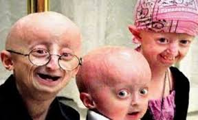Progeria (Yaşlılık Hastalığı) Nedir?