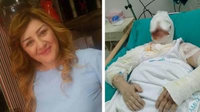 Samsun'da saldırgan tecavüz etmek istediği kadını kezzapla yaktı!