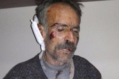 Sezgin Tanrıkulu: Nusaybin'de köylülere işkence yapıldığı doğru mudur?