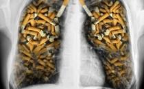 Sigara nasıl kanser yapıyor?