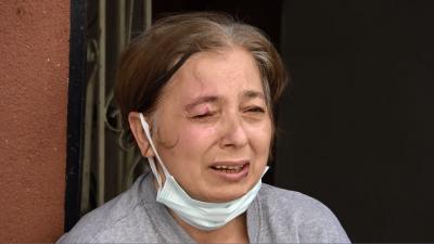 Sultangazi'de yolda yürüyen kadının gözüne maytap isabet etti