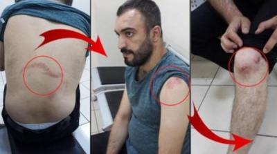 Terzide pantolon paçasına kızan polis 'Erdoğan'a hakaretten' işkence yaptı!'