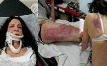 Trans seks işçisine saldırı!
