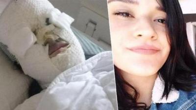 Yüzüne kezzap atılan Berfin Özek, ücretsiz ameliyat olabilecek