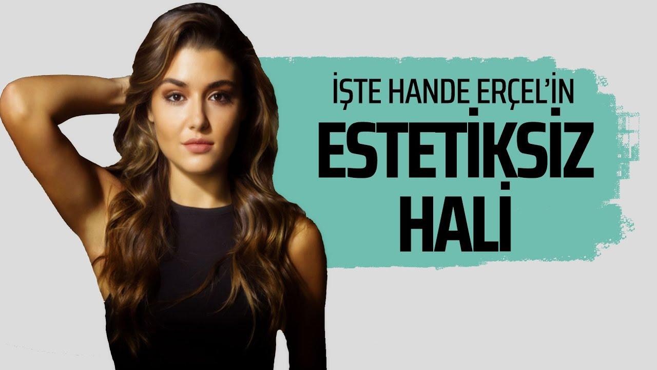 HANDE ERÇEL'İN ESTETİKSİZ HALİ! #magazin