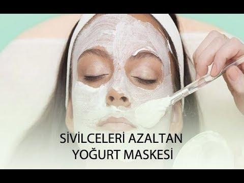 Yoğurt maskesi sivilceleri geçirir mi?